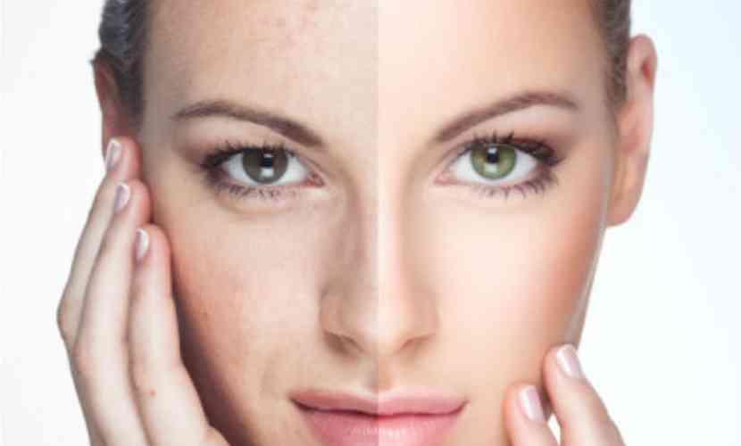 remedii naturale pete piele