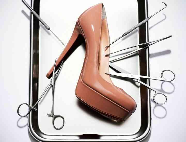 """Procedura """"Cenușăreasa"""" sau operația la picior, de dragul pantofilor de designer"""