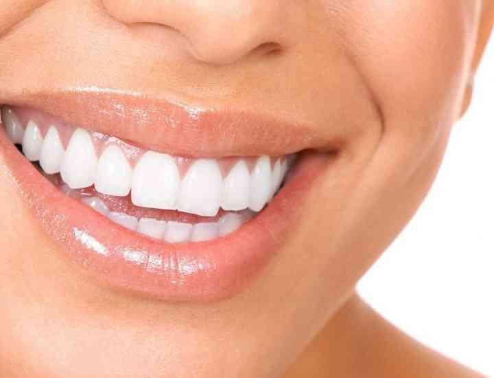 3 trucuri naturale pentru a avea dinţi albi