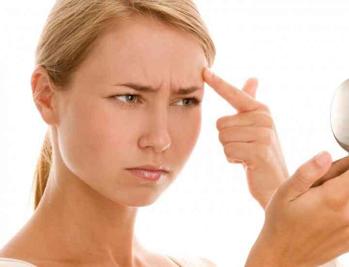 6 mituri despre acnee