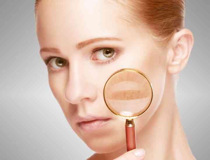 Remedii pentru petele de pe piele