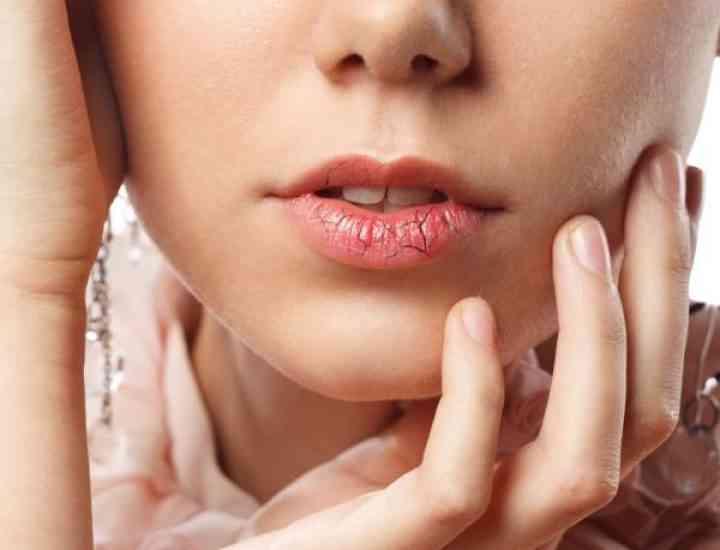 Remedii pentru buze uscate
